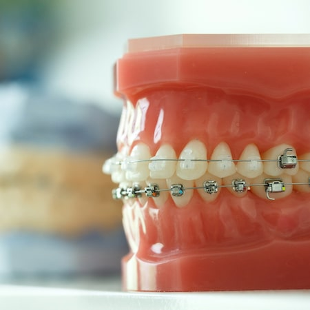 Dental models with braces
