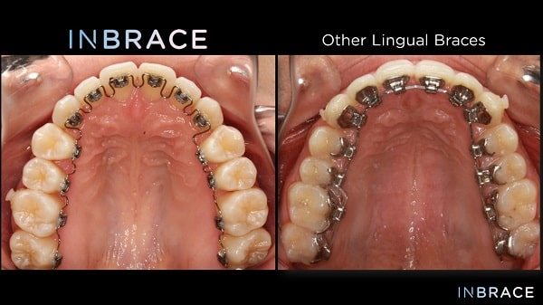 INBRACE braces before and after.